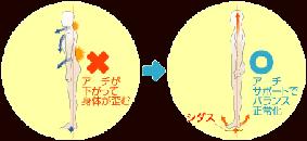 シダス - 腰痛_283x130
